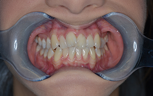 abi-invisalign-before