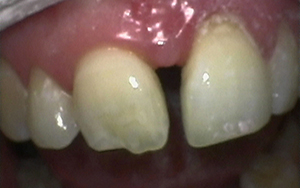 mrt-invisalign-after