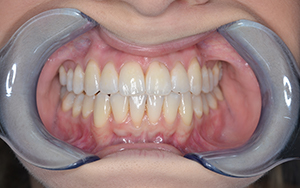 abi-invisalign-after