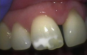 mrt-invisalign-before